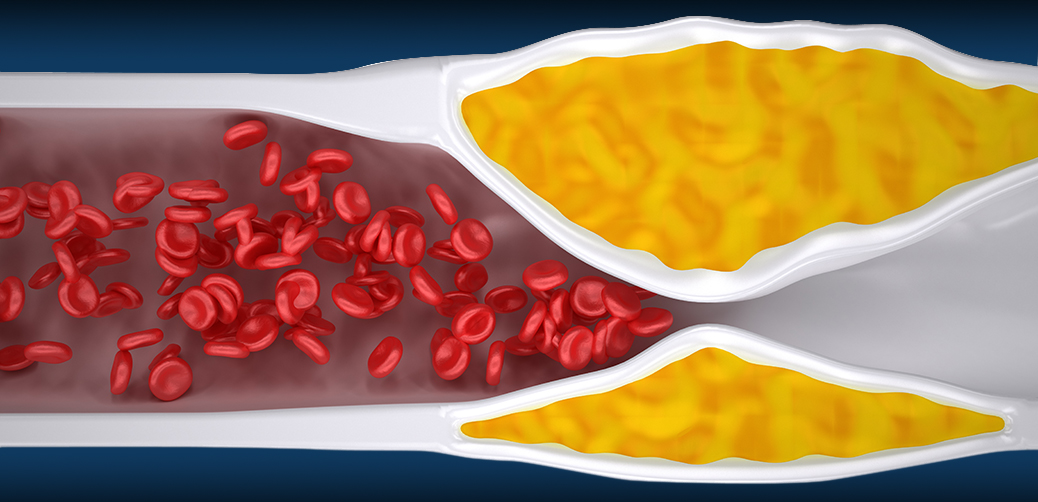 Clogged Artery - Atherosclerosis / Arteriosclerosis - Cholestero
